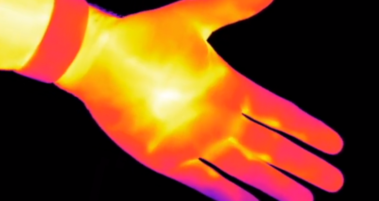 Human Hand on an Infrared Camera