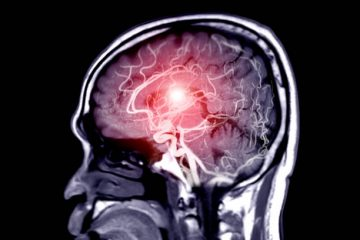 AnInnovative Urine Test Can Detect Brain Tumors Early On